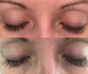 KU2 Wimpernserum - Endlich lange und volle Wimpern